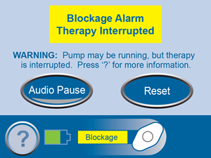 Blockage Alarm Therapy Interrupted Screen No Links