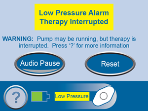 Low Pressure Alarm Therapy Interrupted Screen No Links